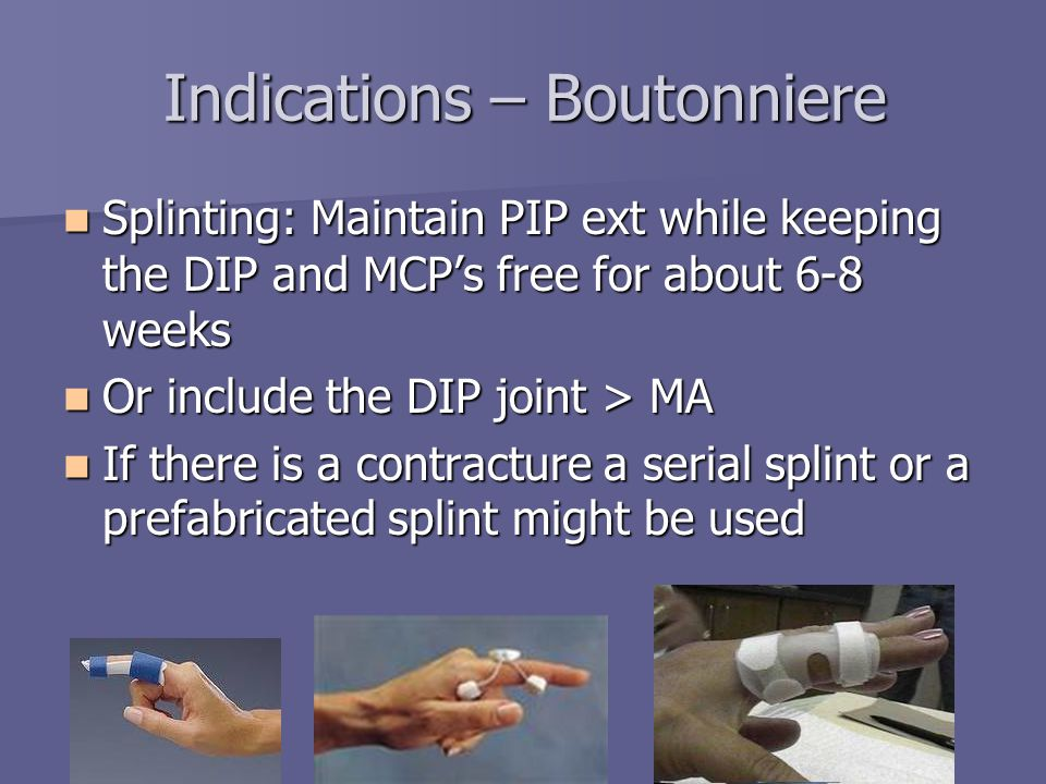 Indications – Boutonniere Splinting: Maintain PIP ext while keeping the DIP and MCP's free for about 6-8 weeks Splinting: Maintain PIP ext while keepi