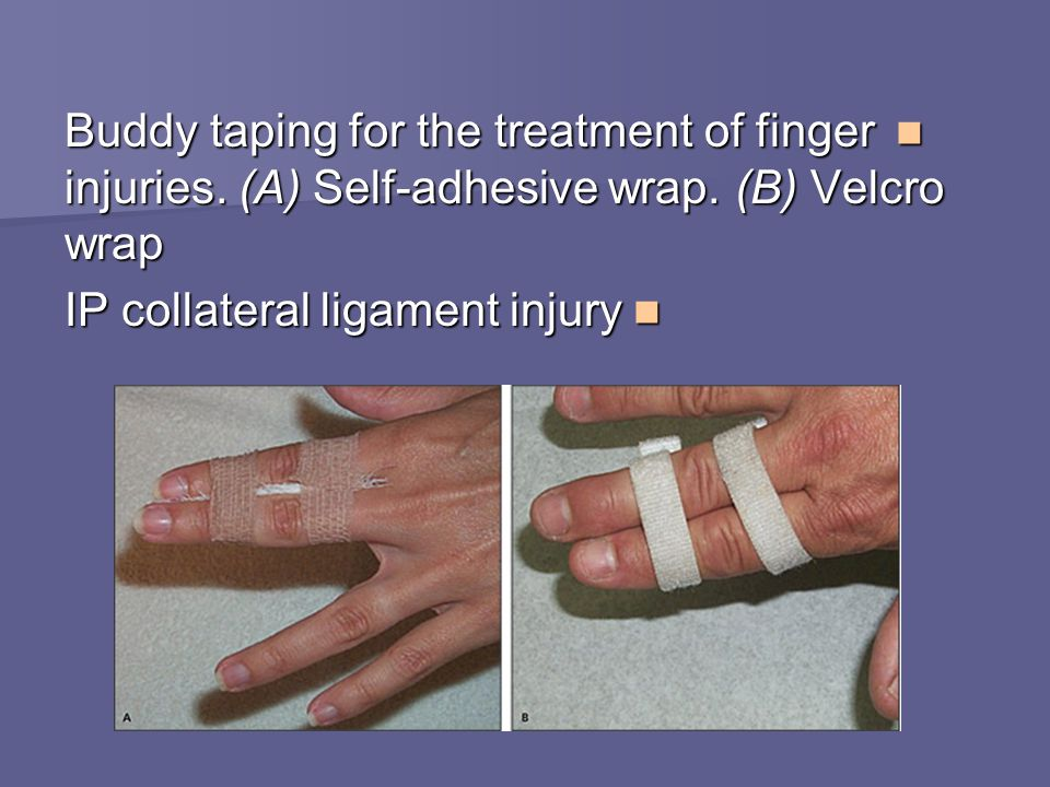 Buddy taping for the treatment of finger injuries. (A) Self-adhesive wrap. (B) Velcro wrap Buddy taping for the treatment of finger injuries. (A) Self