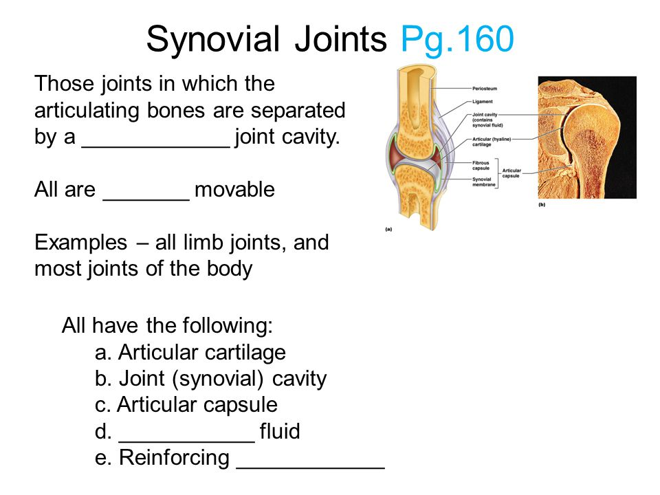 Synovial Joints Pg.160 Those joints in which the articulating bones are separated by a ____________ joint cavity. All are _______ movable Examples – a