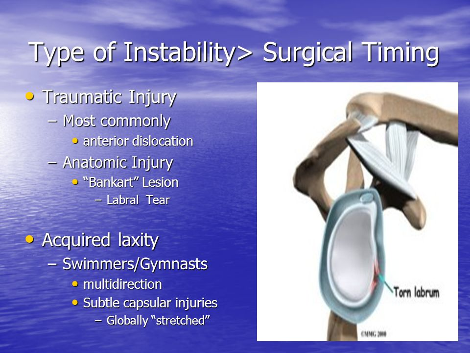 Type of Instability> Surgical Timing Traumatic Injury Traumatic Injury –Most commonly anterior dislocation anterior dislocation –Anatomic Injury Bankart Lesion Bankart Lesion –Labral Tear Acquired laxity Acquired laxity –Swimmers/Gymnasts multidirection multidirection Subtle capsular injuries Subtle capsular injuries –Globally stretched