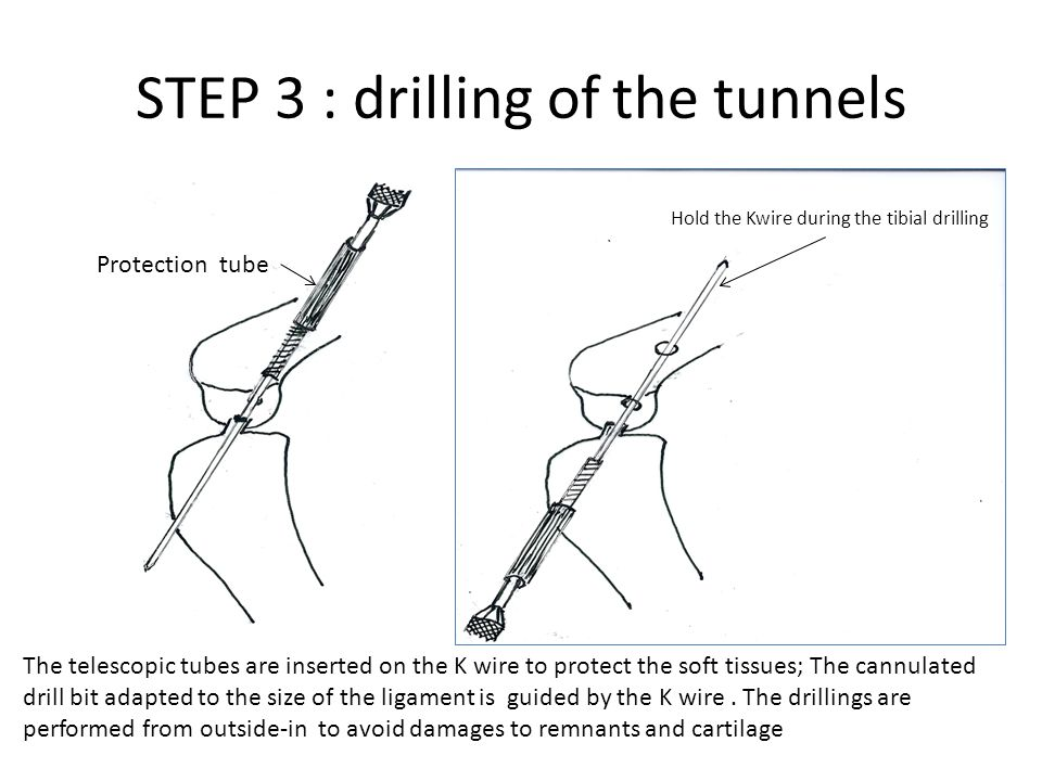 STEP 3 : drilling of the tunnels The telescopic tubes are inserted on the K wire to protect the soft tissues; The cannulated drill bit adapted to the
