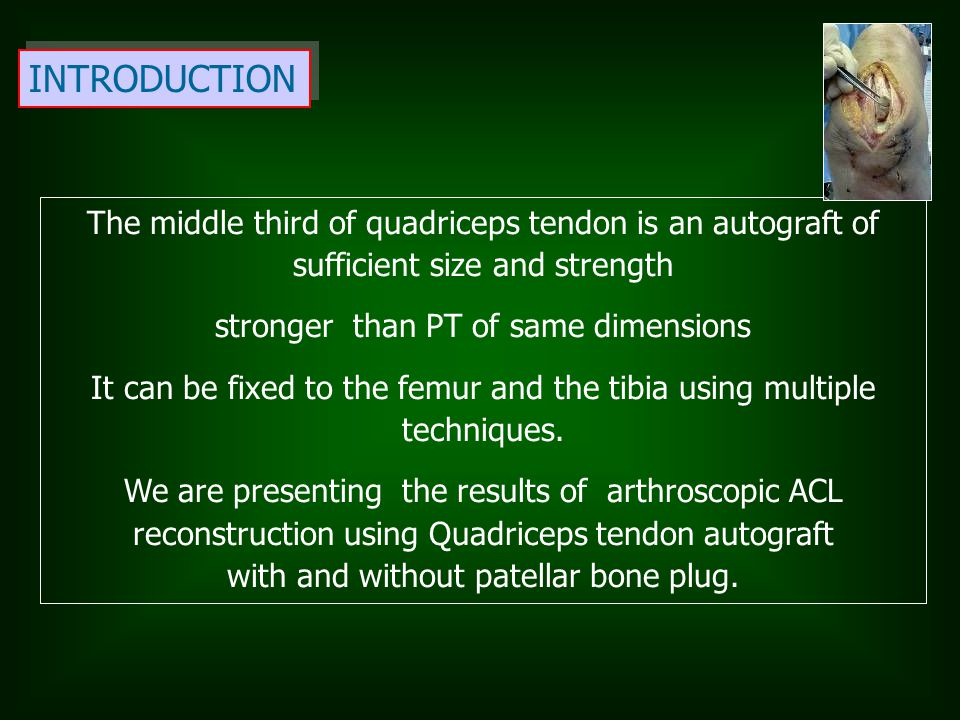 INTRODUCTION The middle third of quadriceps tendon is an autograft of sufficient size and strength stronger than PT of same dimensions It can be fixed