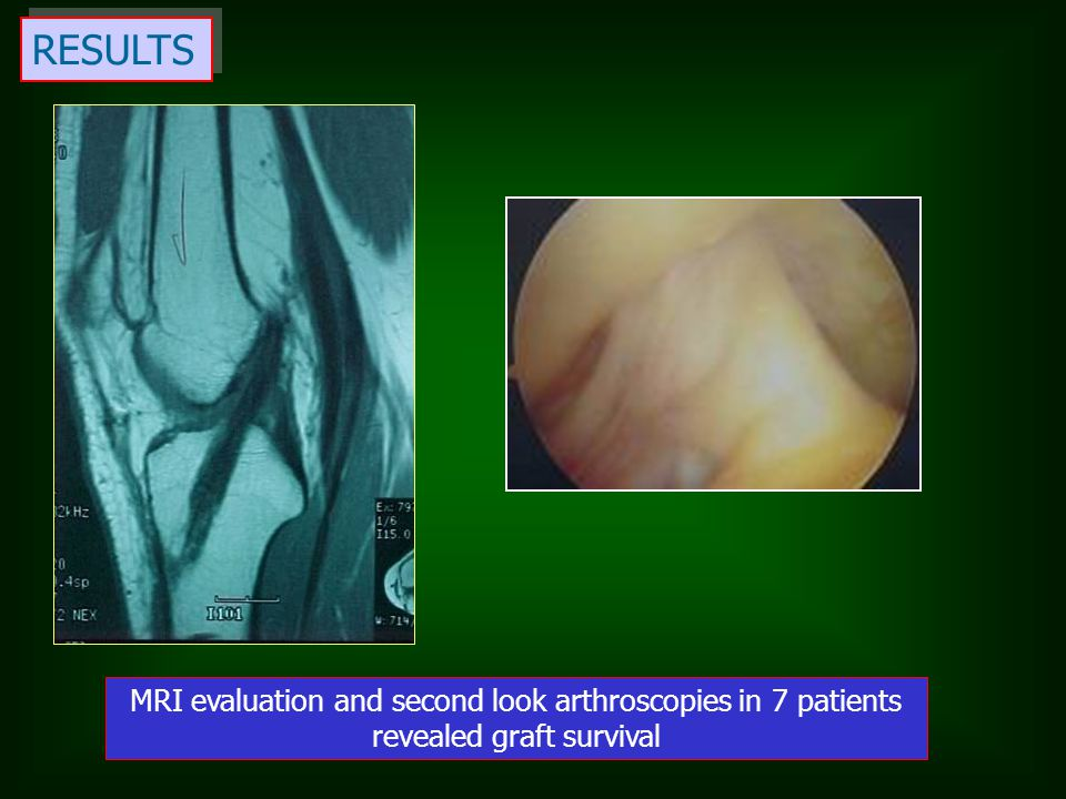 RESULTS MRI evaluation and second look arthroscopies in 7 patients revealed graft survival