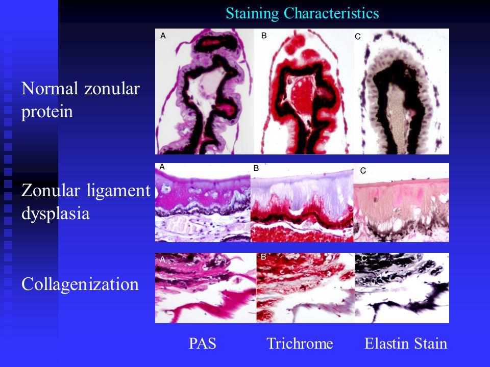 Normal zonular protein Zonular ligament dysplasia Collagenization PASTrichromeElastin Stain Staining Characteristics