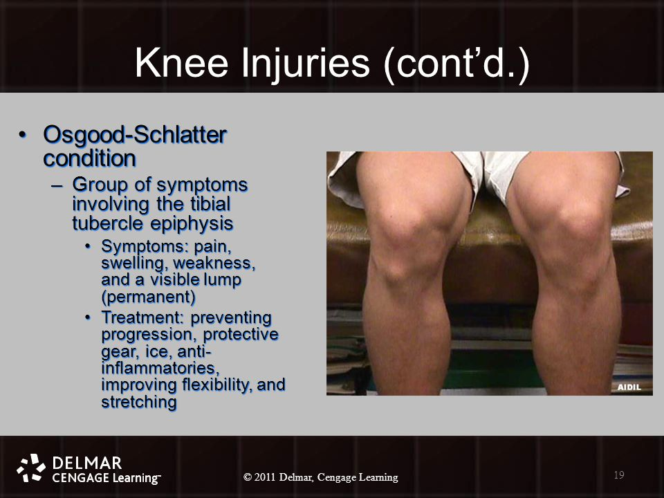 © 2010 Delmar, Cengage Learning 19 © 2011 Delmar, Cengage Learning Knee Injuries (cont'd.) Osgood-Schlatter conditionOsgood-Schlatter condition –Group of symptoms involving the tibial tubercle epiphysis Symptoms: pain, swelling, weakness, and a visible lump (permanent)Symptoms: pain, swelling, weakness, and a visible lump (permanent) Treatment: preventing progression, protective gear, ice, anti- inflammatories, improving flexibility, and stretchingTreatment: preventing progression, protective gear, ice, anti- inflammatories, improving flexibility, and stretching 19