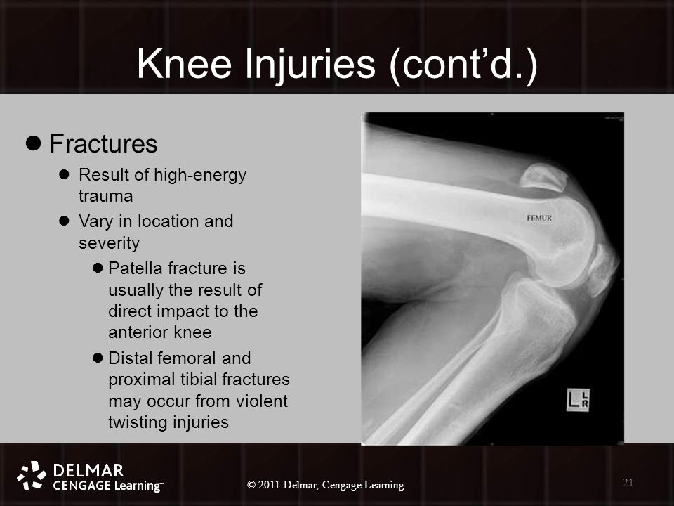 © 2010 Delmar, Cengage Learning 21 © 2011 Delmar, Cengage Learning Knee Injuries (cont'd.) Fractures Result of high-energy trauma Vary in location and severity Patella fracture is usually the result of direct impact to the anterior knee Distal femoral and proximal tibial fractures may occur from violent twisting injuries 21