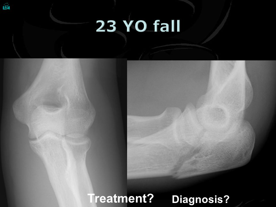  Treatment? Diagnosis?