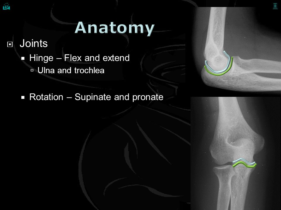 Avulsed radial collateral ligament and common extensor origin Diagnosis?   Treatment ?