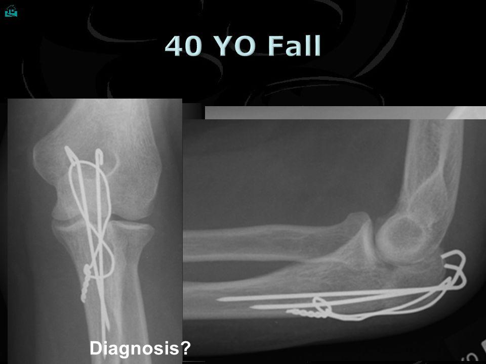 Classify ? Descriptive Treatment ? At most 2 distal screws What is the problem ? 9 Proximal 