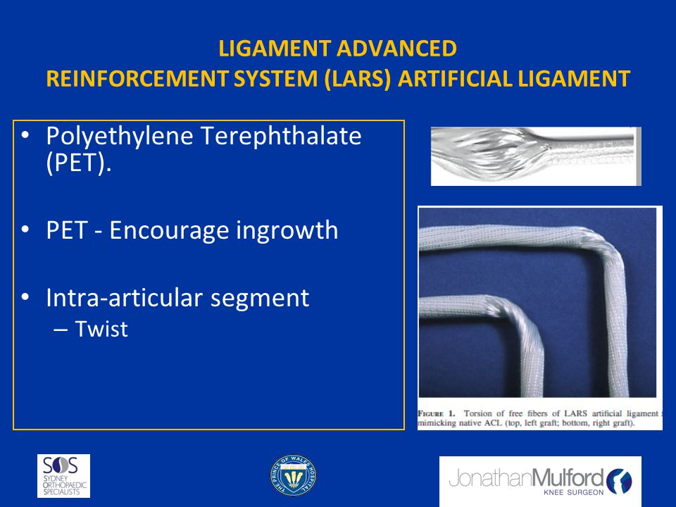 LIGAMENT ADVANCED REINFORCEMENT SYSTEM (LARS) ARTIFICIAL LIGAMENT Polyethylene Terephthalate (PET). PET - Encourage ingrowth Intra-articular segment –