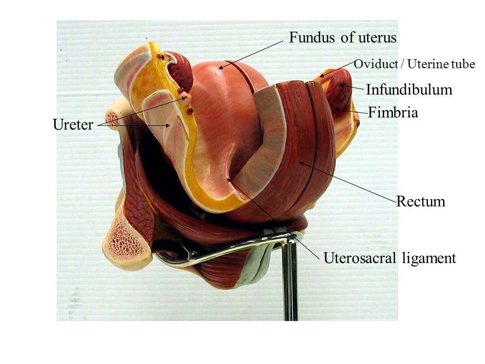 Rectum Fundus of uterus Infundibulum Fimbria Oviduct / Uterine tube Uterosacral ligament Ureter