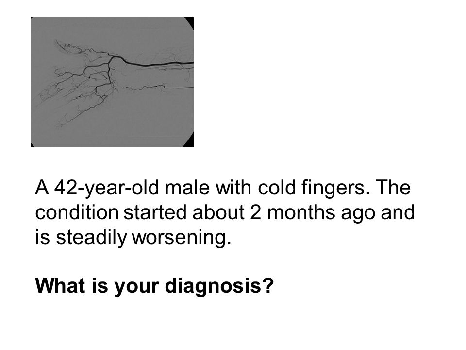 A 42-year-old male with cold fingers.