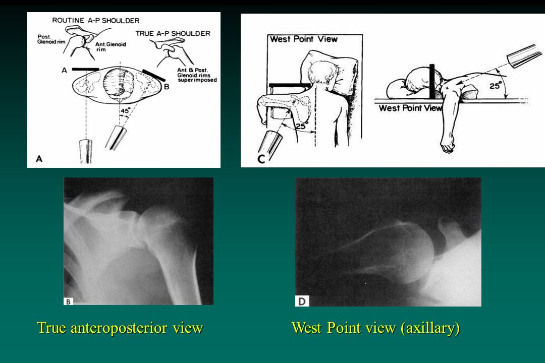 West Point view (axillary) True anteroposterior view