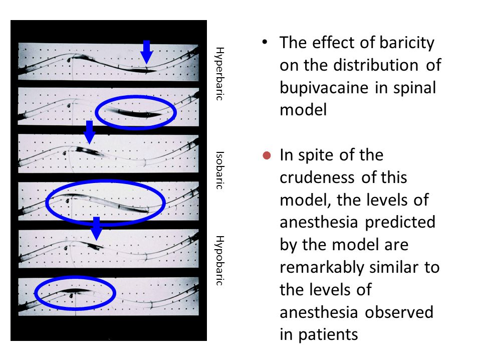 The effect of baricity on the distribution of bupivacaine in spinal model Hyperbaric Isobaric Hypobaric l In spite of the crudeness of this model, the