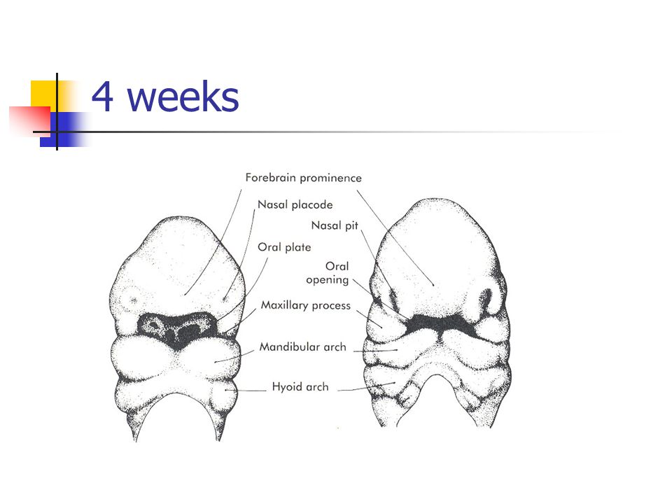First Branchial Cleft Cysts Type II Squamous epithelium and other ectodermal components Anterior neck, superior to hyoid bone.