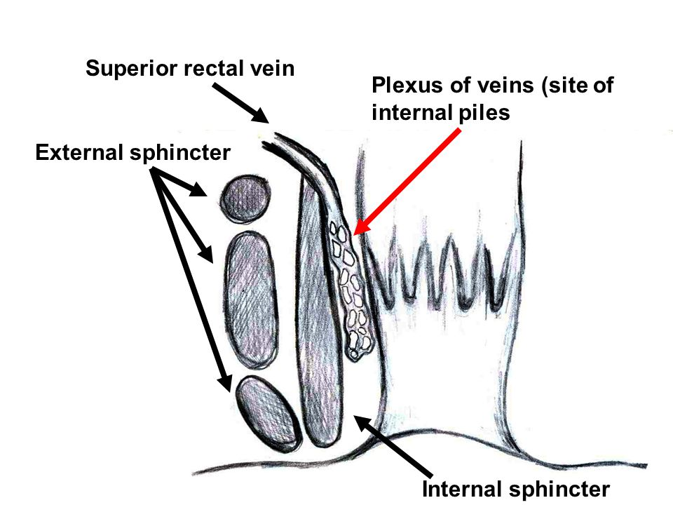 External sphincter Superior rectal vein Plexus of veins (site of internal piles Internal sphincter