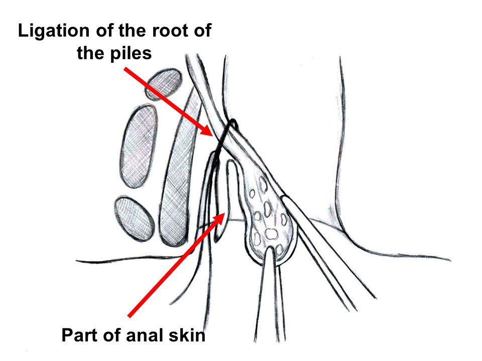 Ligation of the root of the piles Part of anal skin