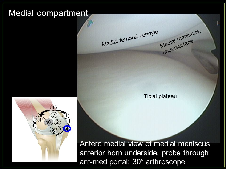Medial compartment Antero medial view of medial meniscus anterior horn underside, probe through ant-med portal; 30° arthroscope Medial femoral condyle