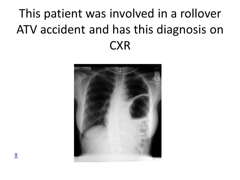 This patient was involved in a rollover ATV accident and has this diagnosis on CXR X