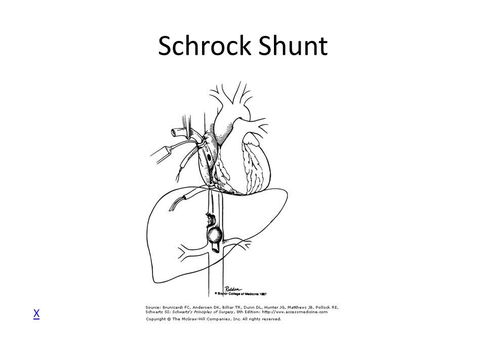 Schrock Shunt X