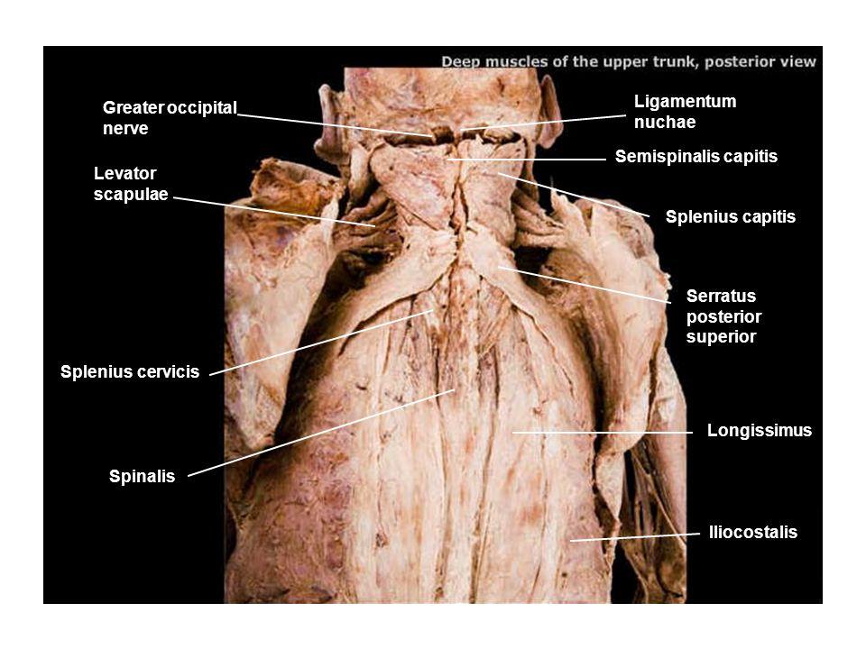 Semispinalis cervicis Iliocostalis Longissimus