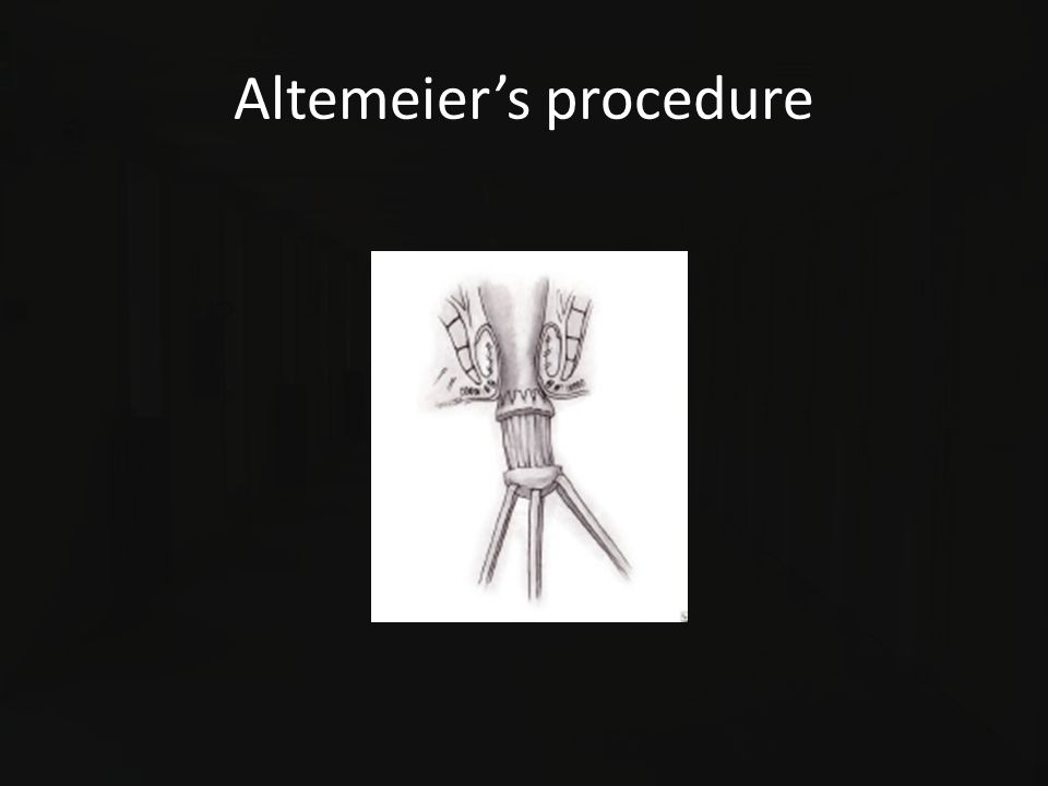 Altemeier's procedure
