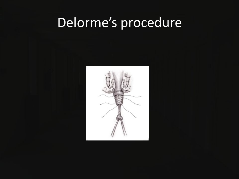 Delorme's procedure