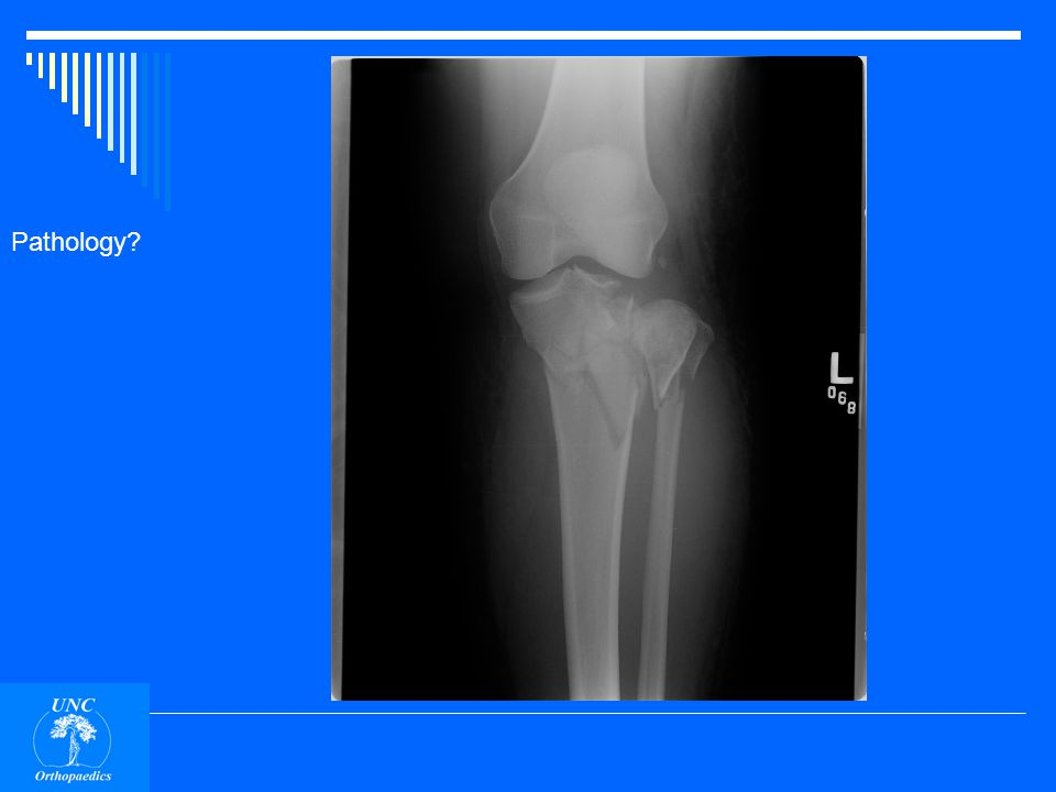 Patella fracture. Difficult to see on AP view.