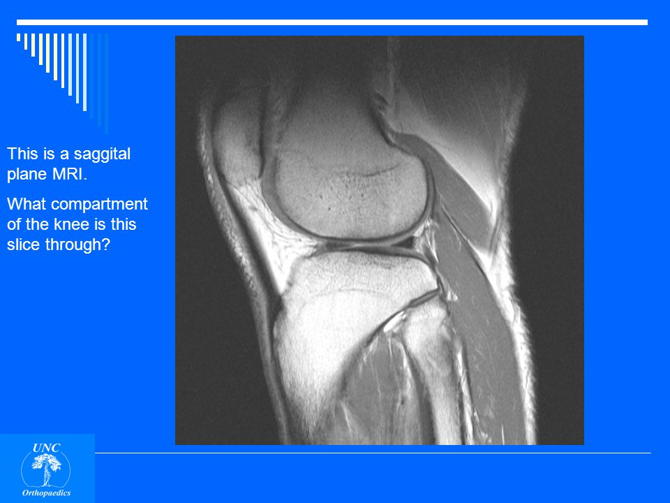ACL PCL MCL Medial and lateral meniscii.