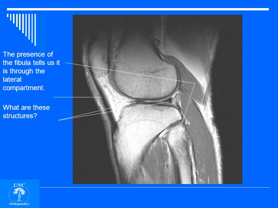 This is a saggital plane MRI. What compartment of the knee is this slice through