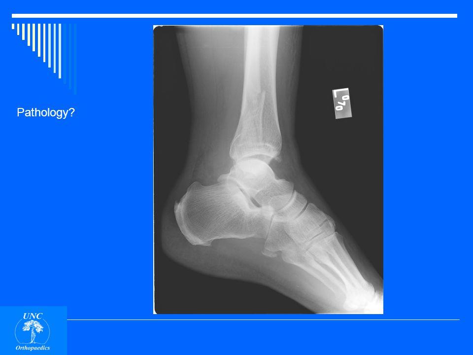 Bimalleolar ankle fracture.