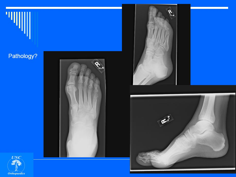 Fracture, base of 5 th metatarsal