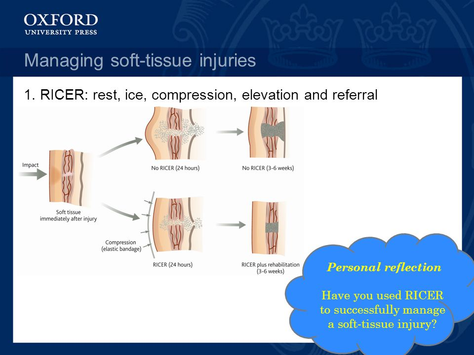 Managing soft-tissue injuries 1.