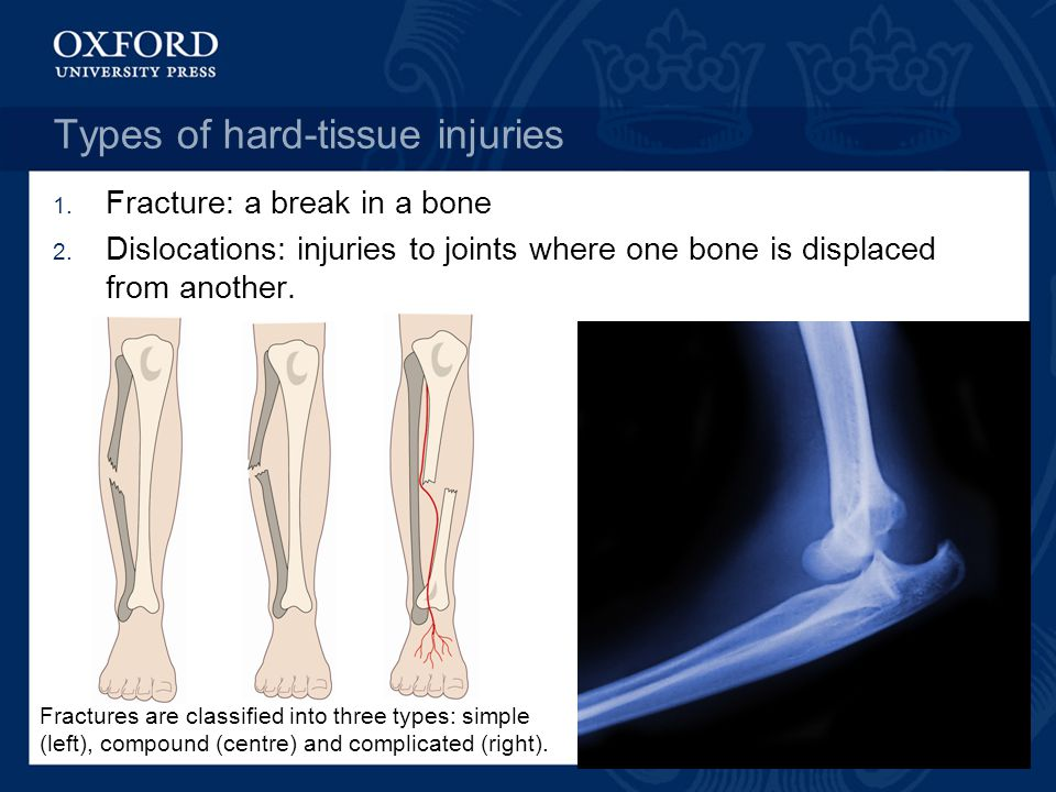 Types of hard-tissue injuries 1. Fracture: a break in a bone 2.