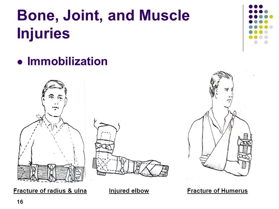 16 Bone, Joint, and Muscle Injuries Immobilization Fracture of radius & ulnaInjured elbowFracture of Humerus Instructor to demonstrate, participants t