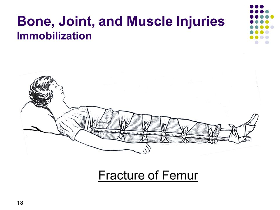 18 Bone, Joint, and Muscle Injuries Immobilization Fracture of Femur