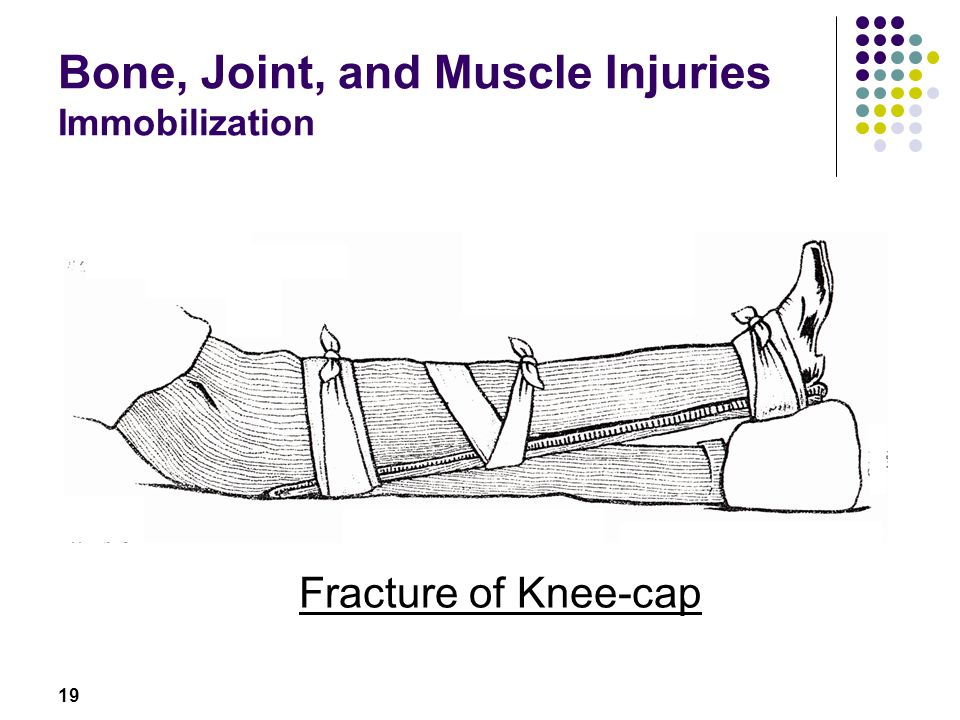 19 Bone, Joint, and Muscle Injuries Immobilization Fracture of Knee-cap
