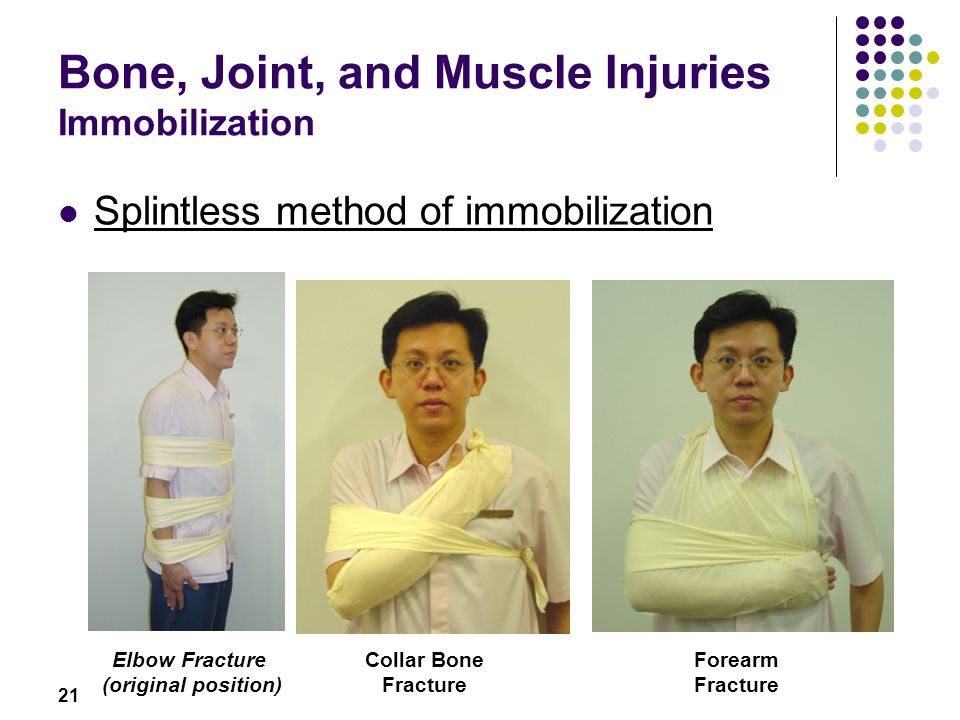 21 Bone, Joint, and Muscle Injuries Immobilization Splintless method of immobilization Elbow Fracture (original position) Collar Bone Fracture Forearm