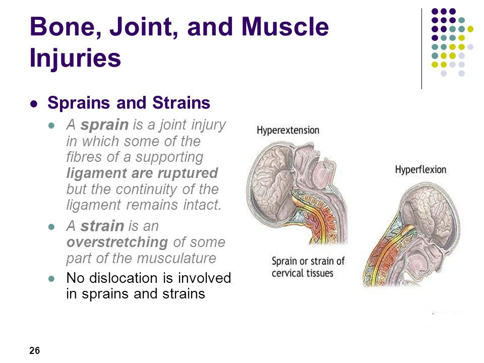 26 Bone, Joint, and Muscle Injuries Sprains and Strains A sprain is a joint injury in which some of the fibres of a supporting ligament are ruptured b