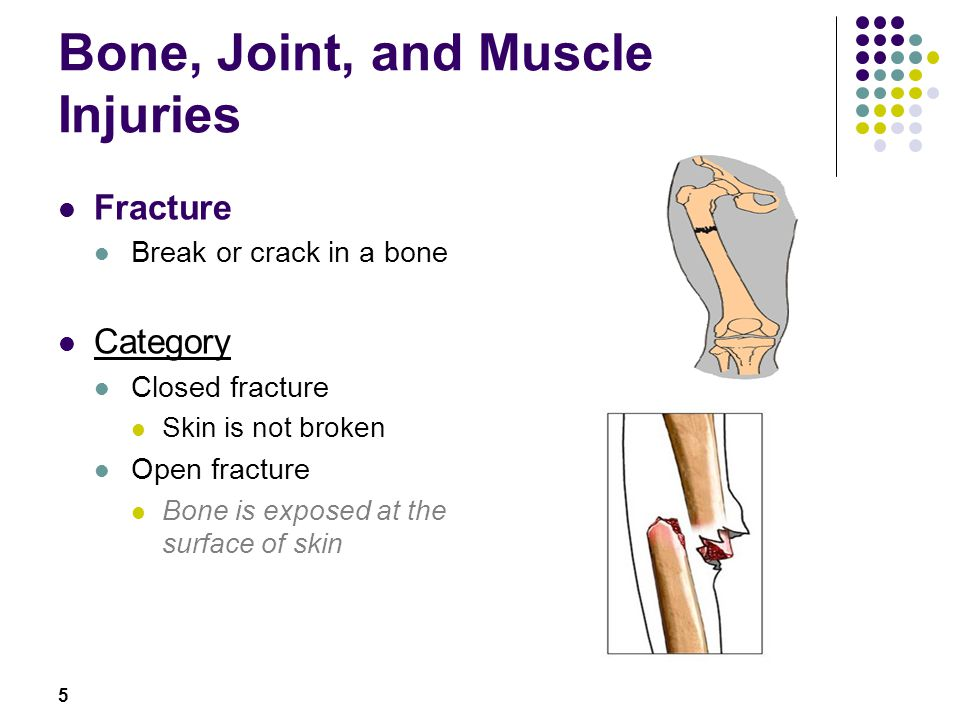 5 Fracture Break or crack in a bone Category Closed fracture Skin is not broken Open fracture Bone is exposed at the surface of skin
