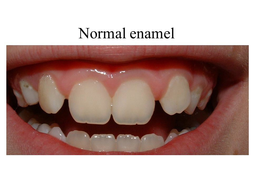 Normal enamel