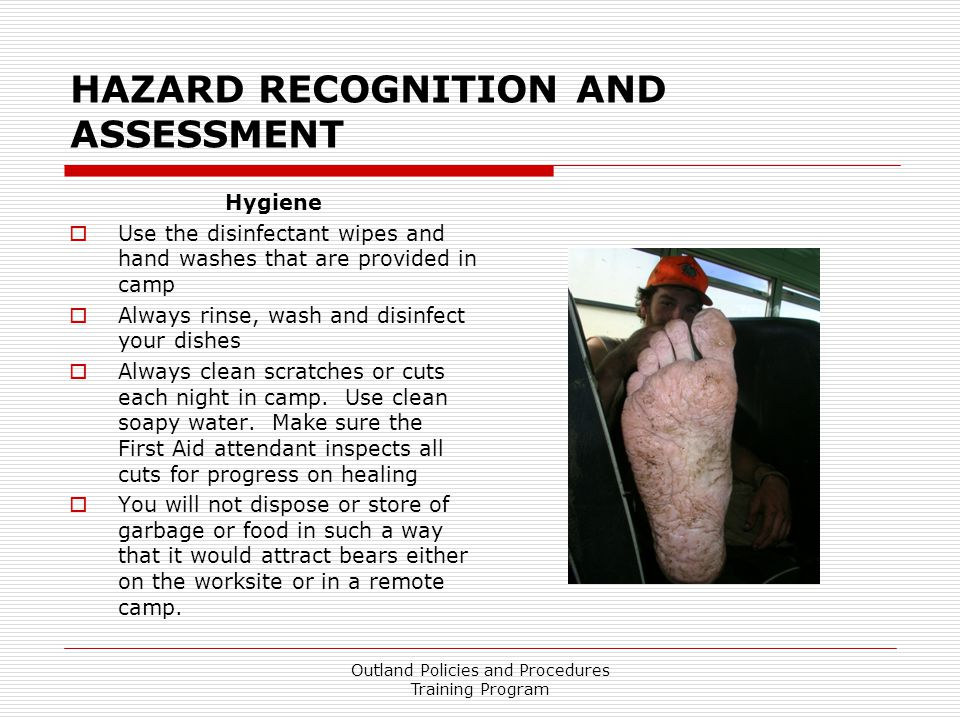 HAZARD RECOGNITION AND ASSESSMENT Hygiene  Use the disinfectant wipes and hand washes that are provided in camp  Always rinse, wash and disinfect your dishes  Always clean scratches or cuts each night in camp.