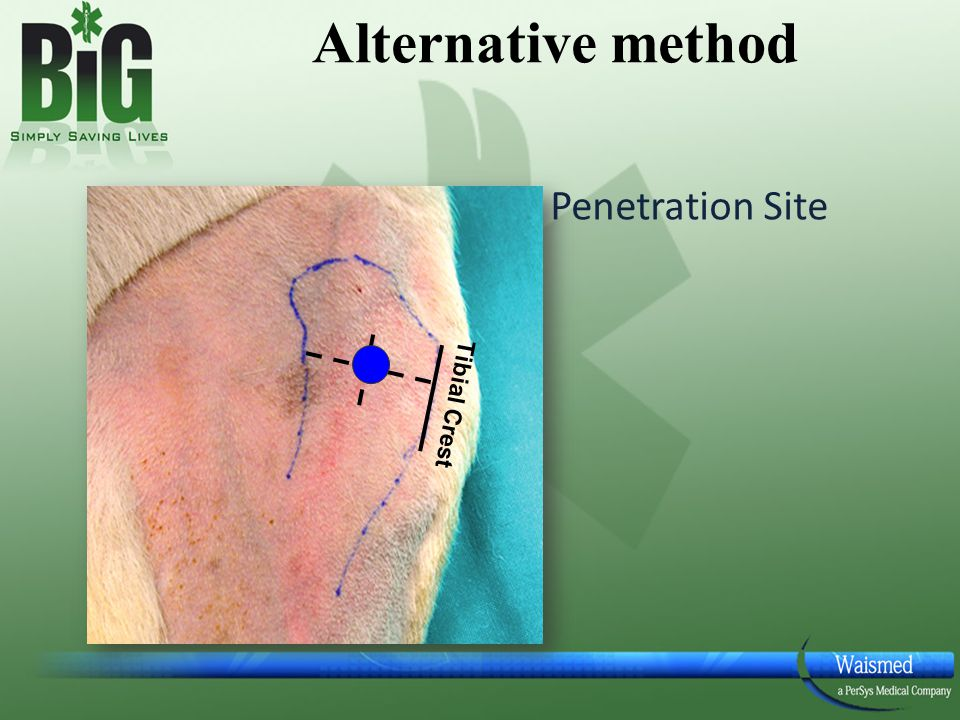 Penetration Site Tibial Crest Alternative method