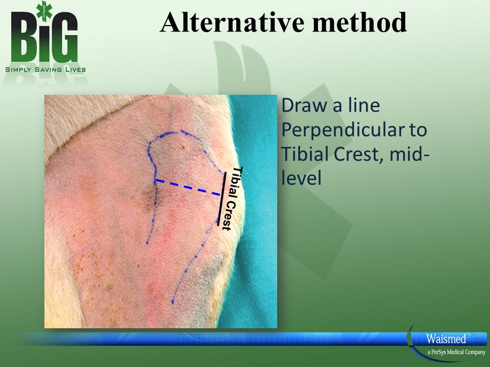 Alternative method Draw a line Perpendicular to Tibial Crest, mid- level Tibial Crest