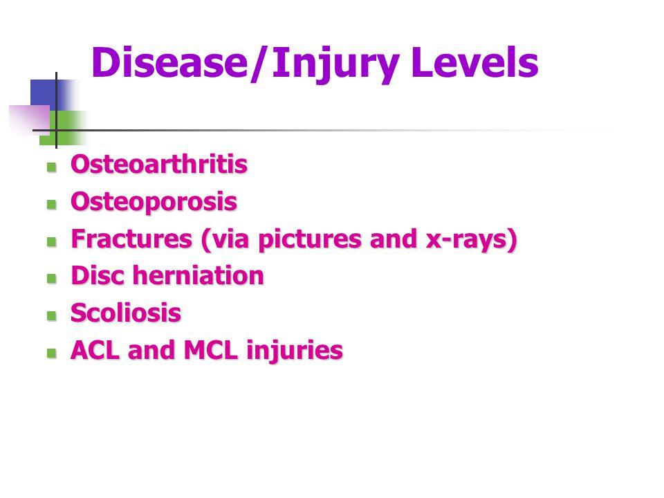 Disease/Injury Levels Osteoarthritis Osteoarthritis Osteoporosis Osteoporosis Fractures (via pictures and x-rays) Fractures (via pictures and x-rays)