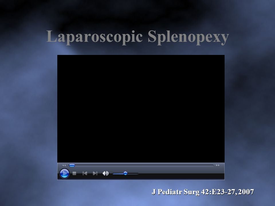 Laparoscopic Splenopexy J Pediatr Surg 42:E23-27, 2007