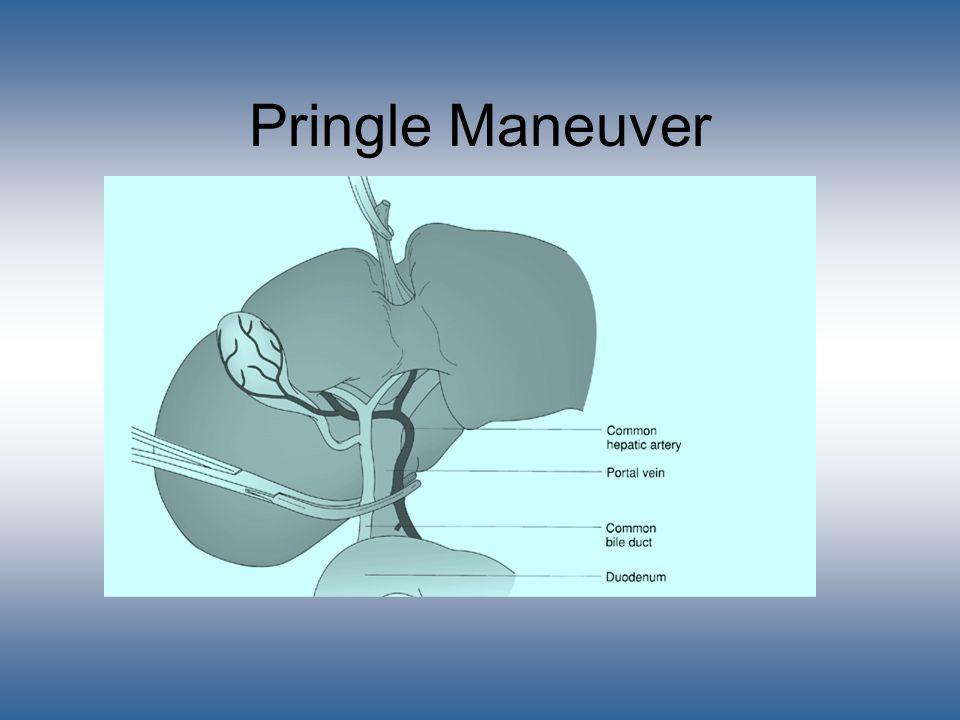 Pringle Maneuver