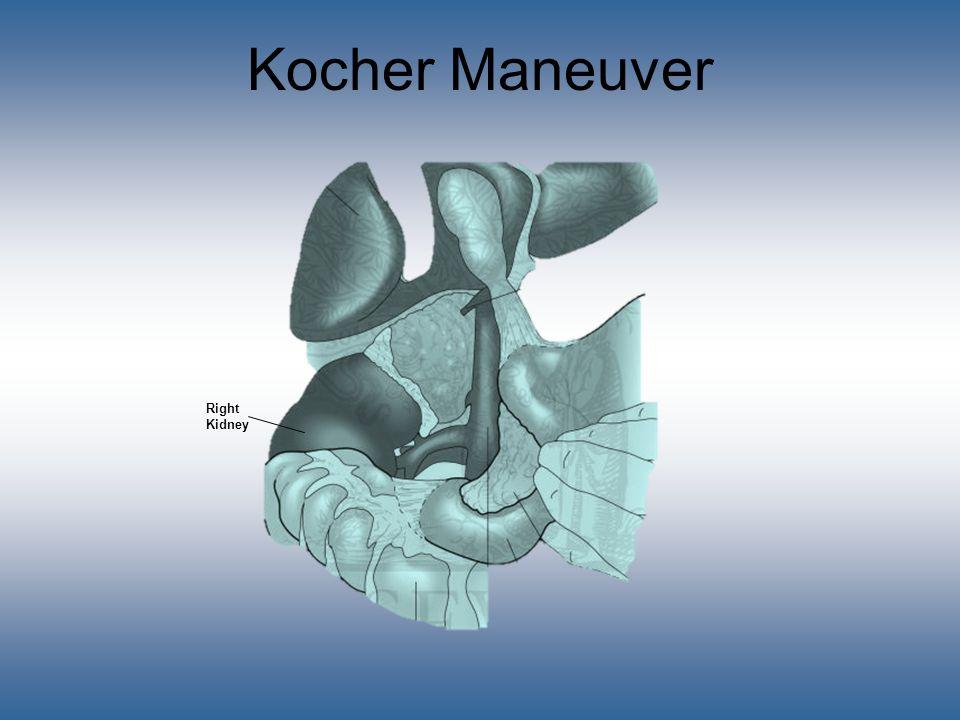 Kocher Maneuver Right Kidney