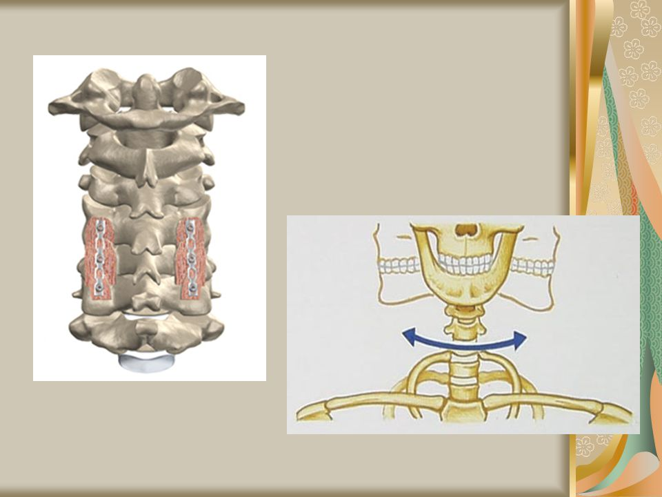 b) Ball-and-Socket joint – rounded end of one bone fits into cuplike cavity of another Ex: hips & shoulders