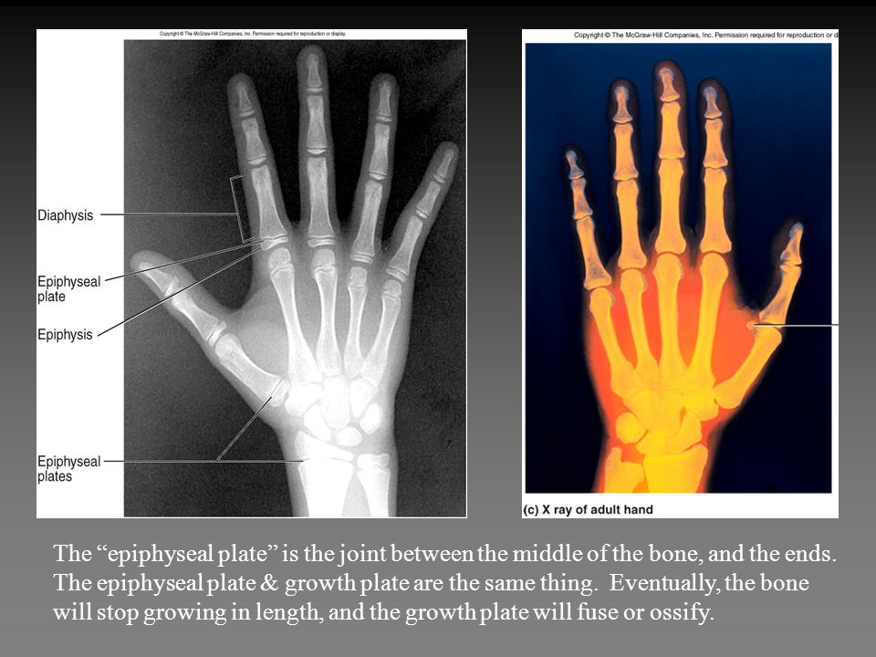 The epiphyseal plate is the joint between the middle of the bone, and the ends.